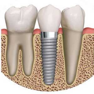 dental-implant-drawing