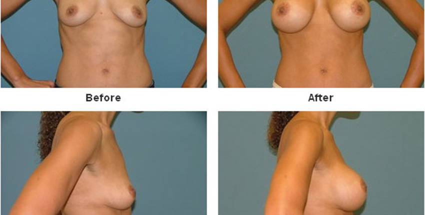 breast-augmentation-292-850x430