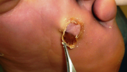 Affordable Solution For Wart Removal